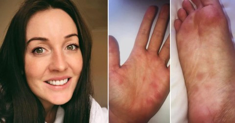 Unexplained skin rashes ?could be new symptom of Coronavirus? - Recovered Covid-19 patient reveals
