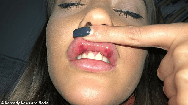 """Flight attendant, 21, left with lips that resembled a """"baboon"""