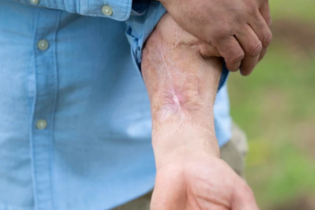 Man who lost his pen!s to horrific blood infection becomes first man in the world to have a new one built on his arm