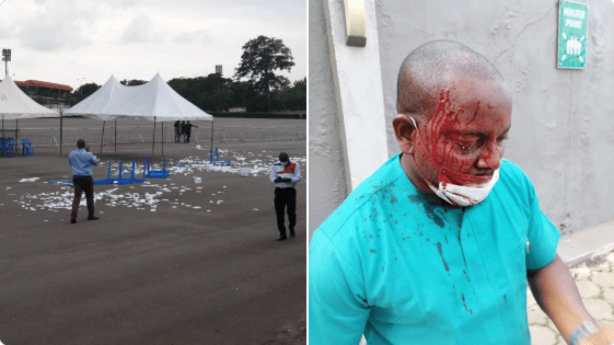 Nigerian Medical Association elections in Enugu ends in violence (Videos & Photos)