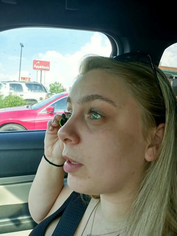 Woman who ripped out her eyes while high on drugs gets new prosthetic eyeballs (photos)
