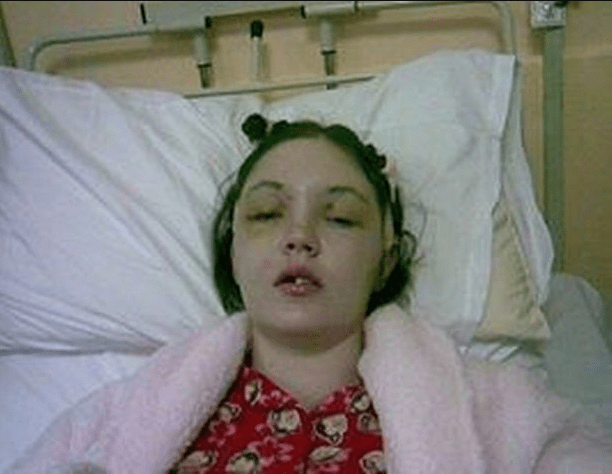 Woman left without a forehead when her knees slammed into her face in car crash