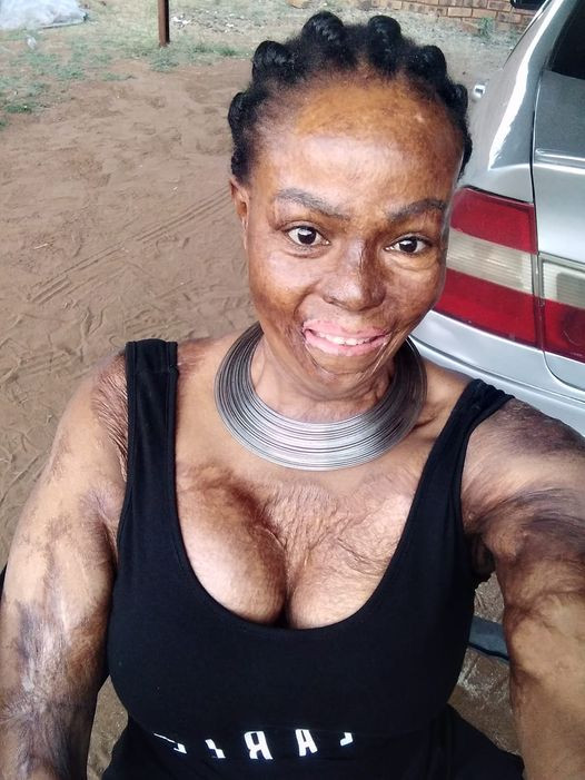 """We had an argument and he decided to play God with our lives"" - South African burn survivor recalls horrible moment her ex-boyfriend set her ablaze, killing their 25 months old daughter"