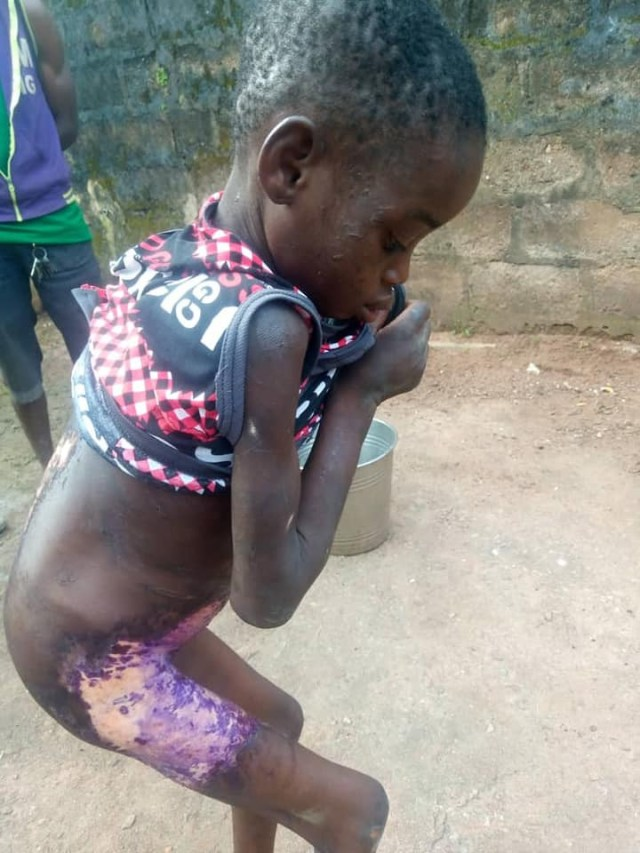 Lady pours hot water on 8-year-old househelp for licking milk