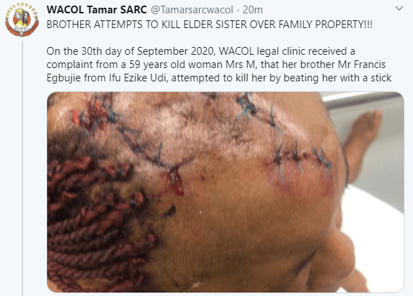 Nigerian woman suffers serious injuries after her older brother allegedly brutalized her over their father