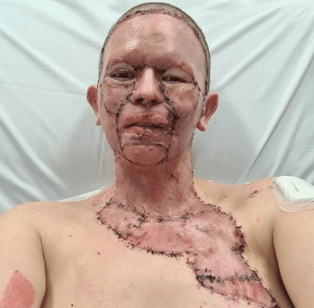 Wife whose face was horrifically burnt gives husband permission to leave her