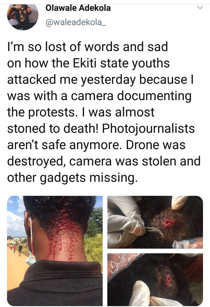 Photojournalist reveals he was attacked by Ekiti #EndSARS protesters, leaving him with a head injury