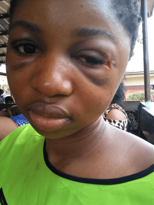 Woman survives 5 days with bullet in her head in Enugu