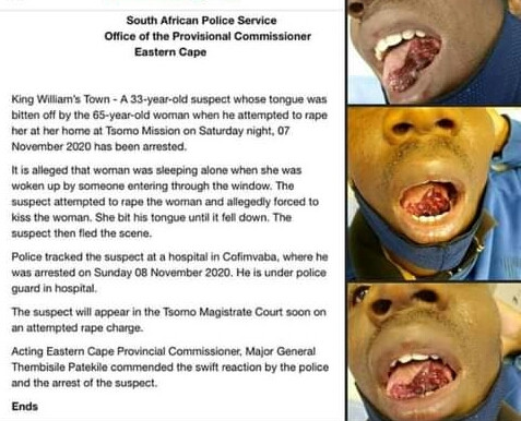 Graphic photos of man whose tongue was bitten off by 65-year-old woman he attempted to rape in South Africa