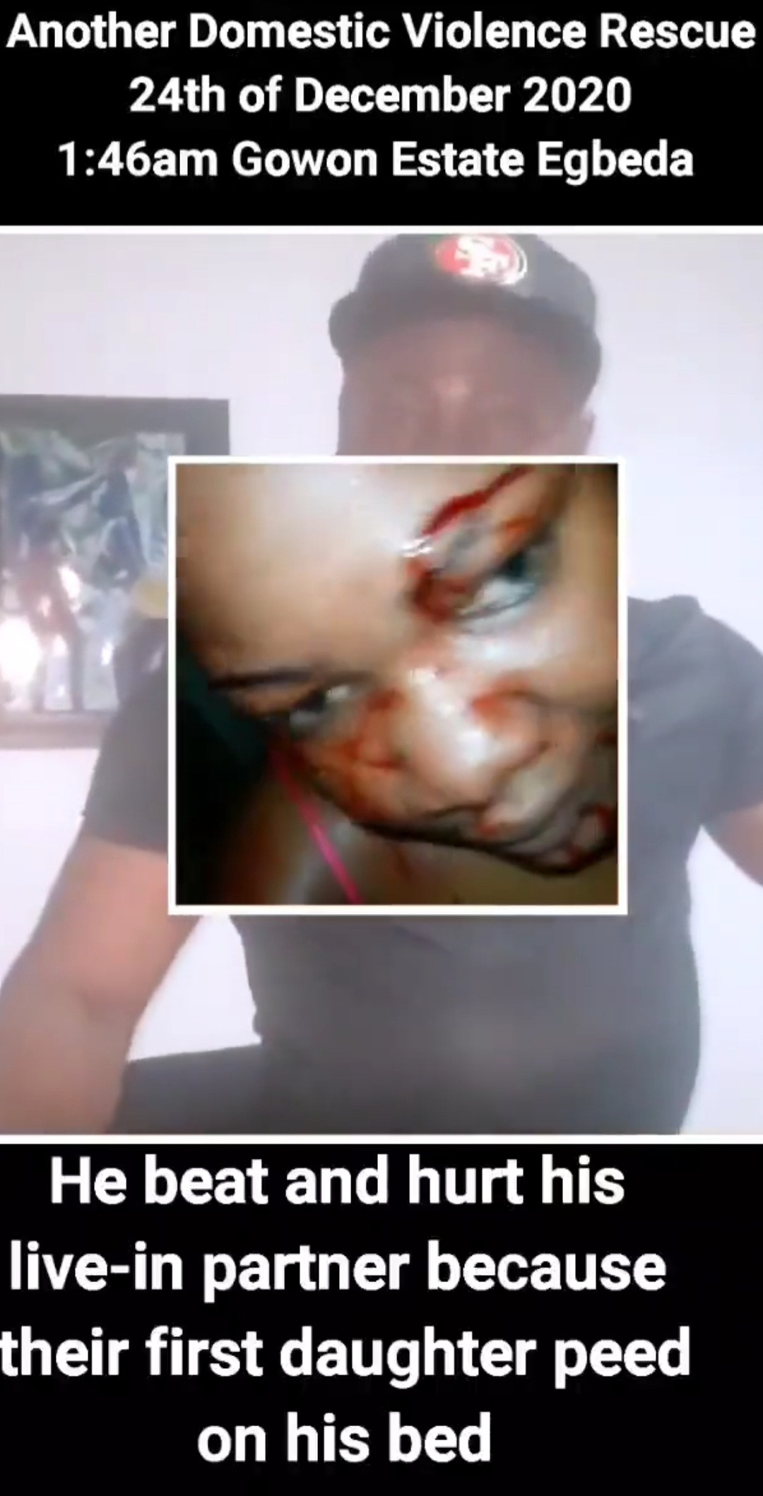 Man allegedly beats up his partner till she bleeds then boasts that he