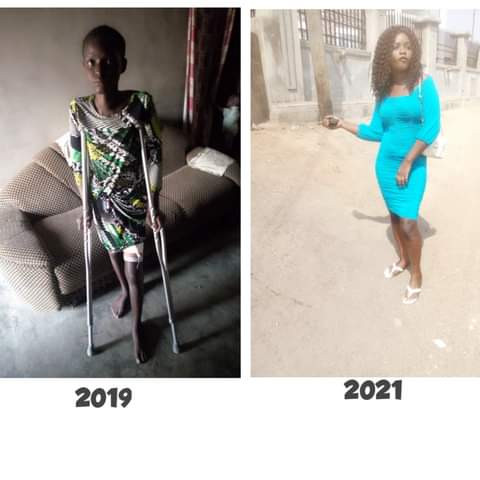 """""""For 6 months on the sickbed my boyfriend never checked up on me, I lost a lot of friends"""" - Nigerian lady shares her story of recovery"""