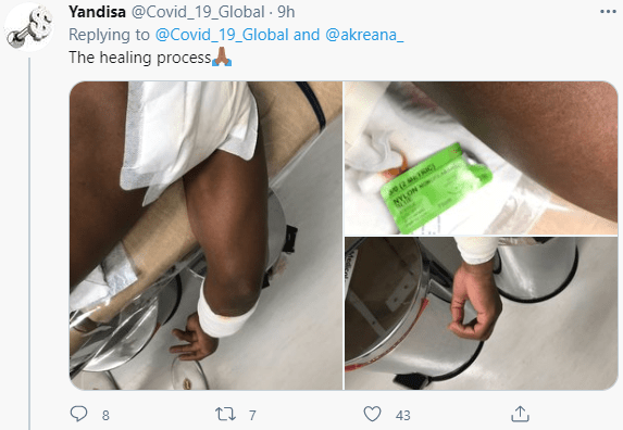 South African man stabbed and scalded with boiling water after his girlfriend became violent when he said he was done with the relationship