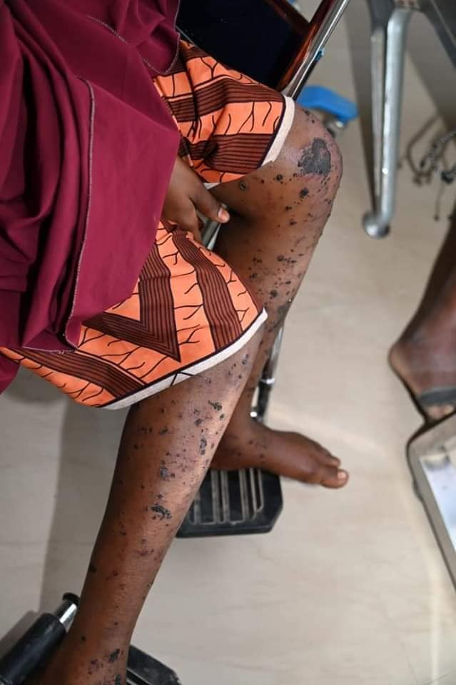 We heard her crying for help but couldn?t do anything until she died  - Woman narrates how her sister was killed in Boko Haram attack in Geidam