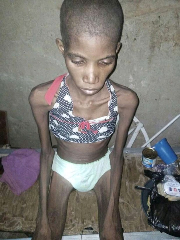 Sokoto police rescue 12-year-old girl caged and starved for 8 months (photos)