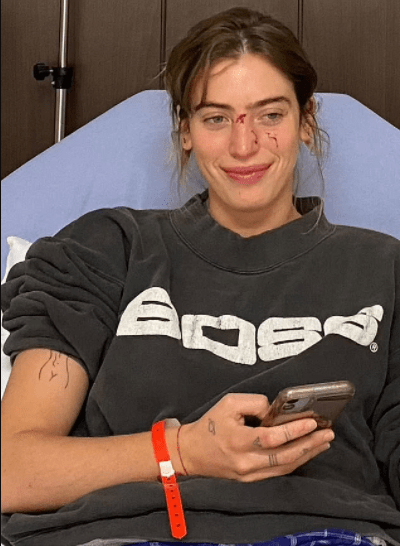 Actress Clara McGregor shows up on red carpet with bloodied face after she was attacked by dog