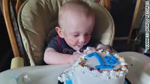 World's most premature baby born at 5 months celebrates his first birthday despite having 0% odds of surviving