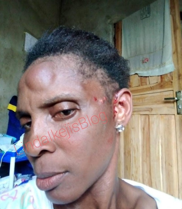 Mother-of-four allegedly battered by her husband after he took another wife (photos)