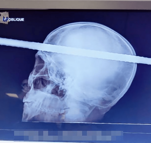 Man survives after 20ft pole plunges through his head in construction accident