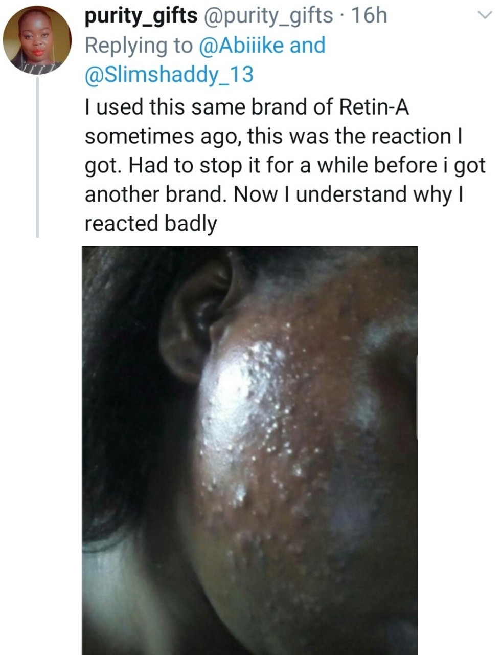 Pharmacist raises alarm after discovering expired ointment disguised as a different product with new expiry date (photos/video)