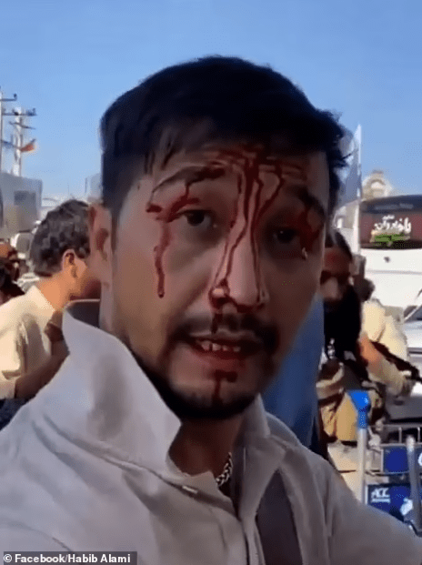 Family members speak out after Australian man is beaten till he bled by Taliban guards near Kabul airport