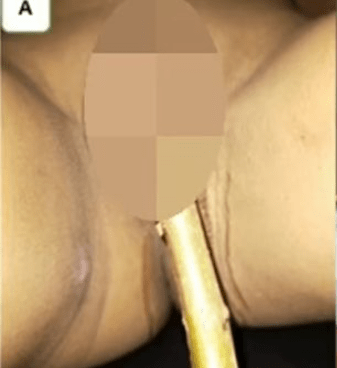 Boy, 11, gets scrotum impaled on 5cm-long stick after falling from tree (graphic photos)