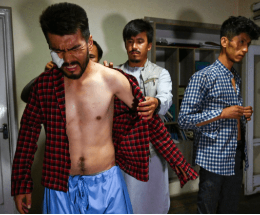 Photos show horrific injuries inflicted on Afghan reporters by Taliban as the group clamp down on freedom of speech (photos)