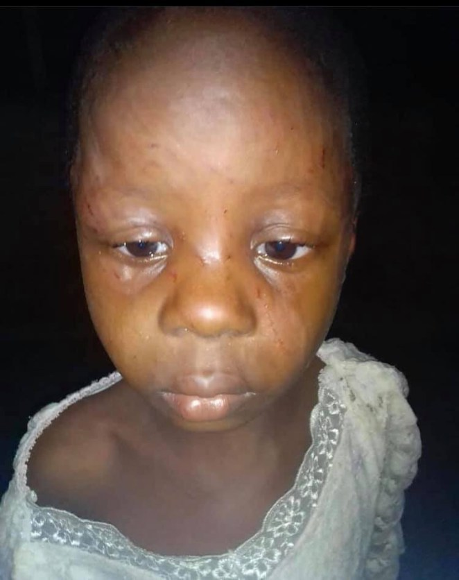 Twitter user calls for arrest of woman who allegedly brutalized her child