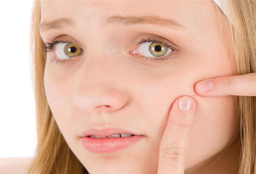 مرض لا مفر منه وقد يخلف آثاره الليزرأكثرعلاجات حب الشباب