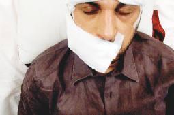 المهندس يتماثل للشفاء بعد حادث السير على الحدود الفرنسية الإيطالية Alghad