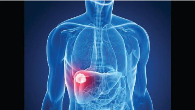 التهاب الكبد فحوصات يجب إجراؤها للوقاية من المرض Alghad