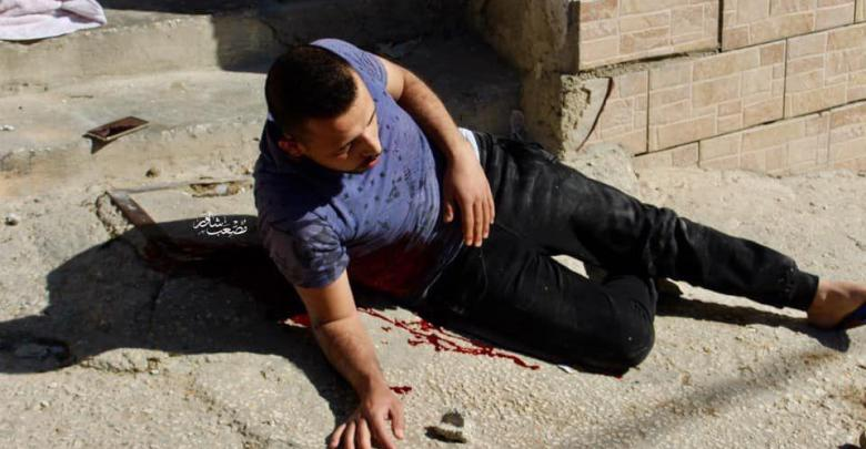 Photo of لحظة استشهاد شاب برصاص الاحتلال في الخليل (فيديو وصور)