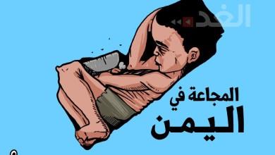 Photo of المجاعة في اليمن