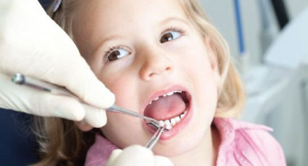 سقوط الأسنان اللبنية يستلزم تركيب طقم بديل Alghad