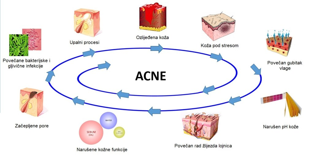 Proces nastajanja Akni