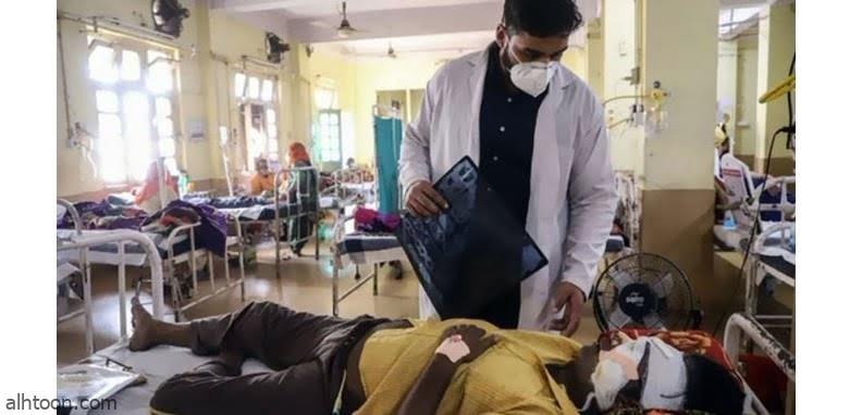 شاهد: هندي يفقد جزء من فكه بسبب الفطر الأسود - صحيفة هتون الدولية