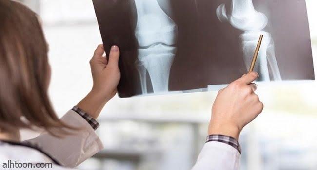 أسباب وأعراض وعلاج هشاشة العظام