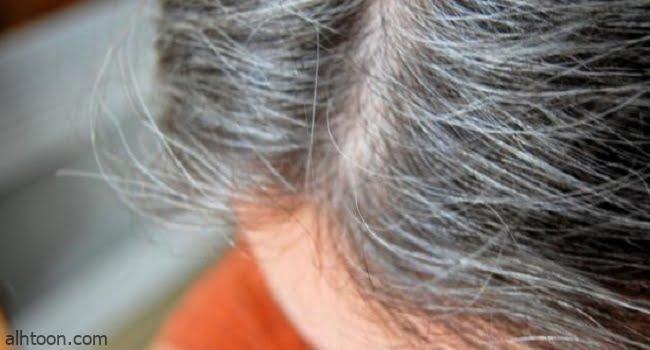 علاج شيب الشعر المبكر