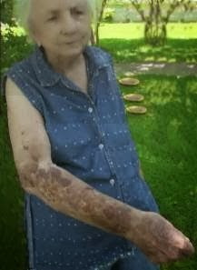 Years later Vickie still had visible skin problems that would occasionally appear