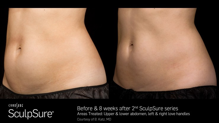 sculpsure laser fat reduction in kapolei