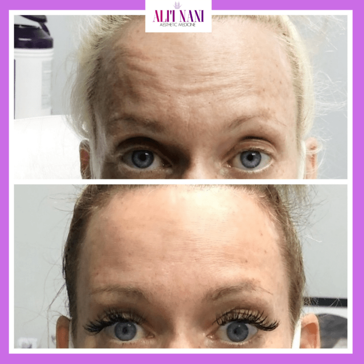 BOTOX/XEOMIN + LASER FOR WRINKLES