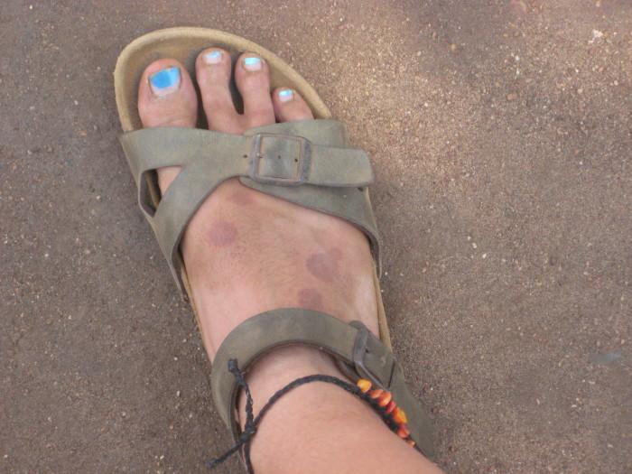 Burnt Foot