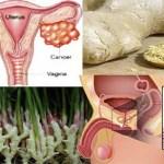 Esta especia común ha sido probada para matar el cáncer de ovario y cáncer de próstata sin el daño colateral de la quimioterapia