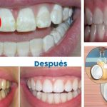 Elimina las manchas negras o blancas de los dientes con este poderoso remedio