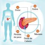 Páncreas inflamado: síntomas que no debes pasar por alto