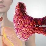 URGENTE: Bebida popular que es perjudicial para la tiroides. ¿Toma usted esta bebida?
