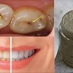 Cura las caries, enfermedad de las encías y blanquea tus dientes con esta pasta de dientes natural hecha en casa