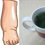 Este té es el mejor remedio para la inflamación de las piernas