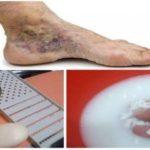 Si quieres deshacerte de las várices o venas varicosas solo tienes que usar esto y las eliminarás…