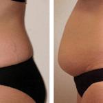 Top 4 causas del aumento de peso en la menopausia y como prevenirla