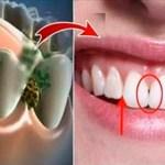 Elimina el mal aliento en 5 minutos! este remedio destruye todas las bacterias que causan el mal aliento!